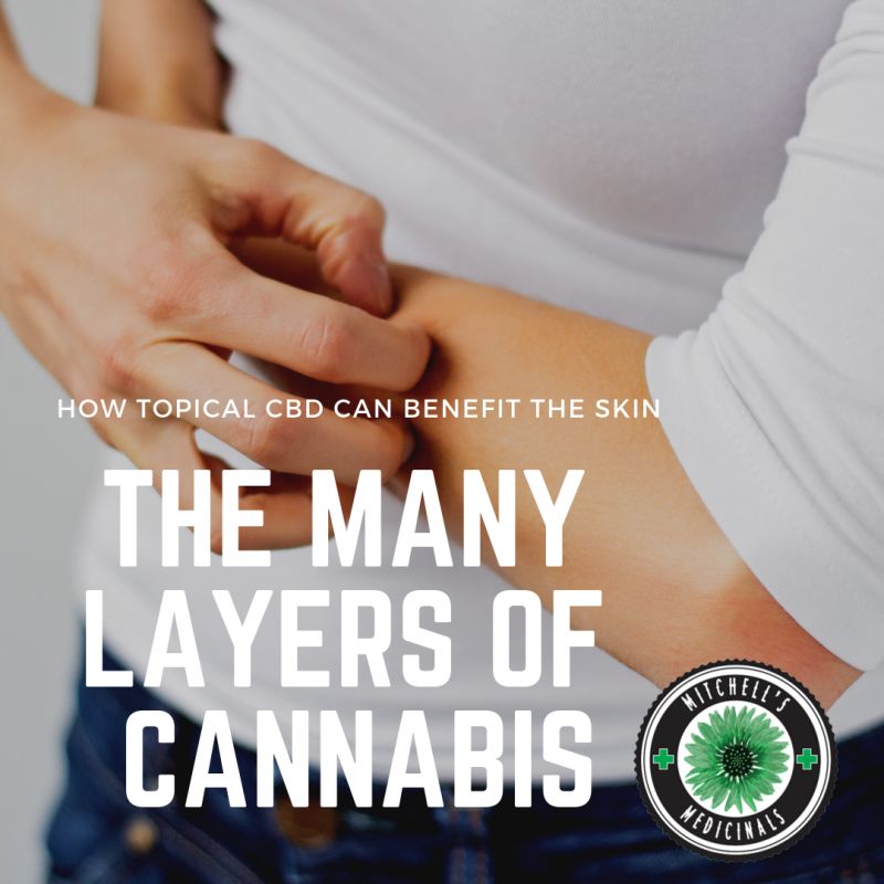 Using CBD on the skin, topical, ointment, salve, eczema, dry, scaly, itchy